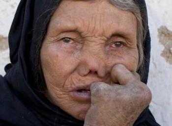 Παγκόσμια Ημέρα κατά της Λέπρας
